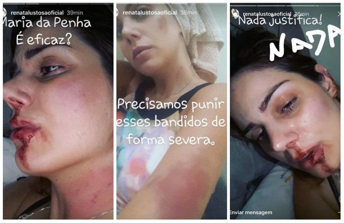 Renata Lustosa postou fotos em que aparece com o rosto ensanguentado (Crédito: Reprodução)