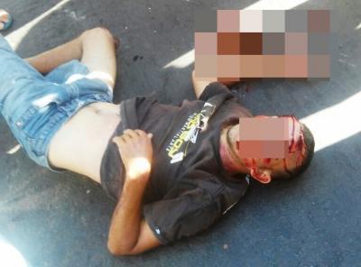Acidente na BR 343 deixa homem gravemente ferido em Campo Maior