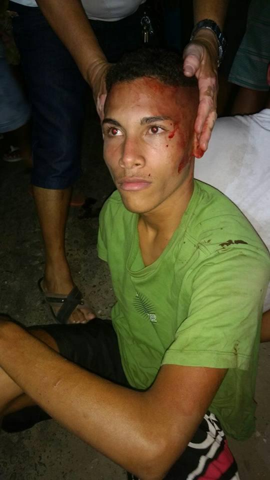 Assaltantes são linchados pela população na zona Norte de Teresina