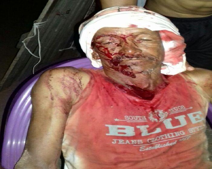 Idoso é agredido e fica gravemente ferido em José de Freitas