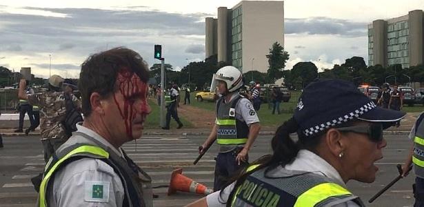 Policial militar do Distrito Federal ficou ferido durante confronto (Crédito: UOL)