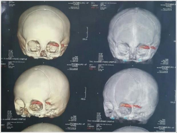 Exame de raio-x mostra caneta cravada em olho de criança (Crédito: Reprodução)