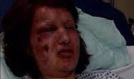 Homem arranca pedaços de rosto da ex: 'ninguém vai te olhar mais'