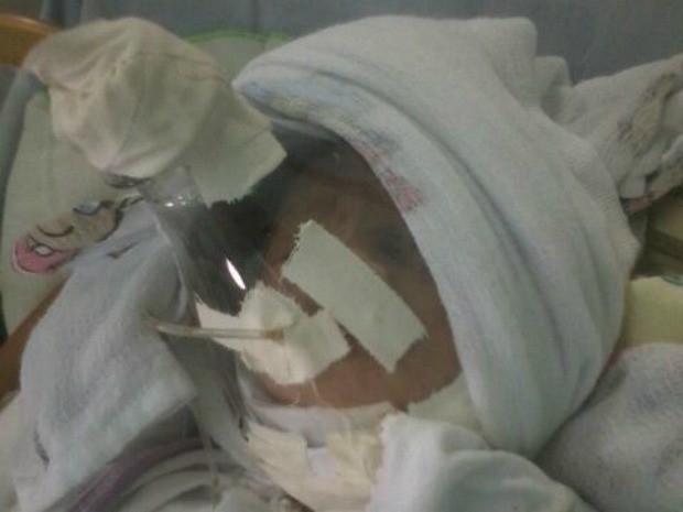 Recém-nascido ficou internado com máscara de garrafa PET (Crédito: Arquivo Pessoal)