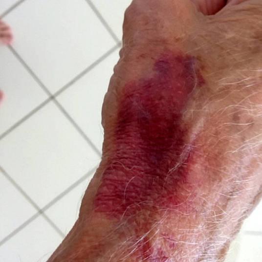 Idoso exibe marcas de hematomas (Crédito: Reprodução)
