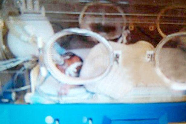 Bebê sendo mantido em incubadora (Crédito: Reprodução)