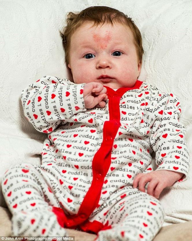 Poppy-Rae nasceu com marca de coração (Crédito: Reprodução)