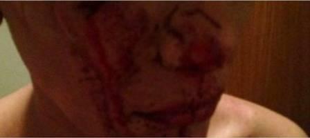 Melissa foi agredida por 20 pessoas (Crédito: Reprodução)