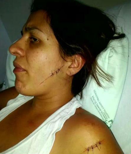 Raquel foi atingida com 11 facadas (Crédito: Reprodução)