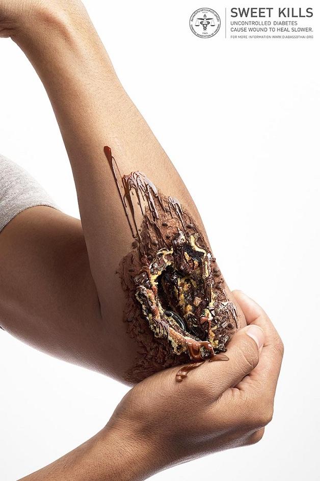 Anúncio criativo sobre diabetes (Crédito: Divulgação)