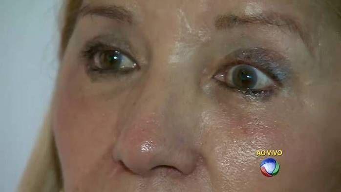 Mulher não consegue mais fechar o olho (Crédito: Reprodução)