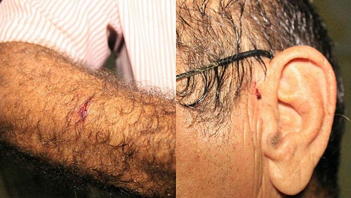 """José Ribeiro, mais conhecido por """"Zé Babão"""" foi agredido pelos assaltantes"""
