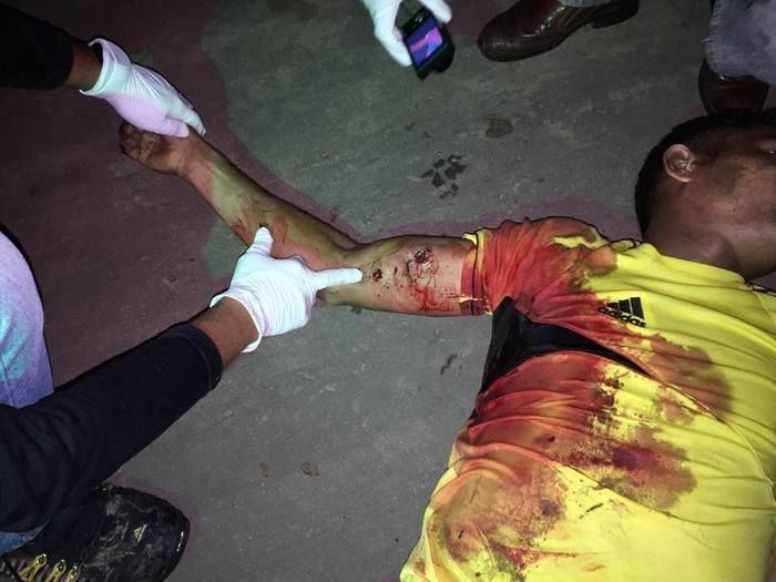 A vítima foi identificada como Ranilson Abreu Silva (Crédito: Reprodução)