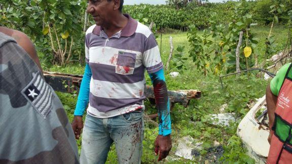 Mototaxista foi atingido no braço (Crédito: Reprodução)
