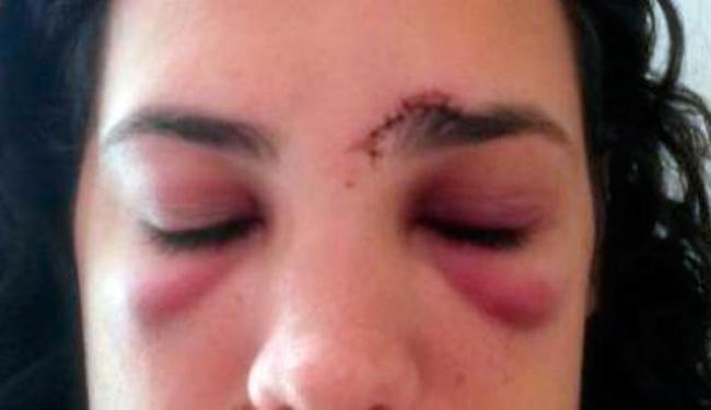 Mulher agredida (Crédito: Divulgação)