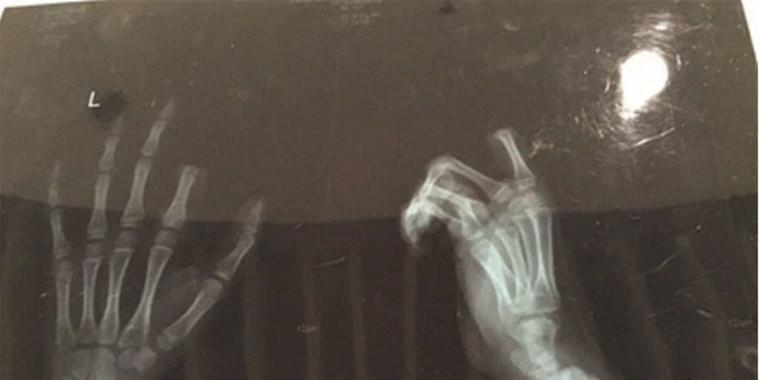 Menino corta dedo após ser repreendido pelos pais por vício em game