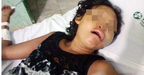 Mulher tem rosto desfigurado ao ser espancada pelo marido  (Crédito: Reprodução)