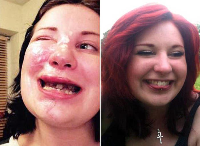 Designer gráfica Zsuzsa Goodyer está usando dentaduras e deverá ser operada em breve (Crédito: Reprodução)