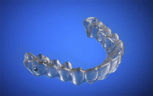 Projeto quase pronto do aparelho dentário