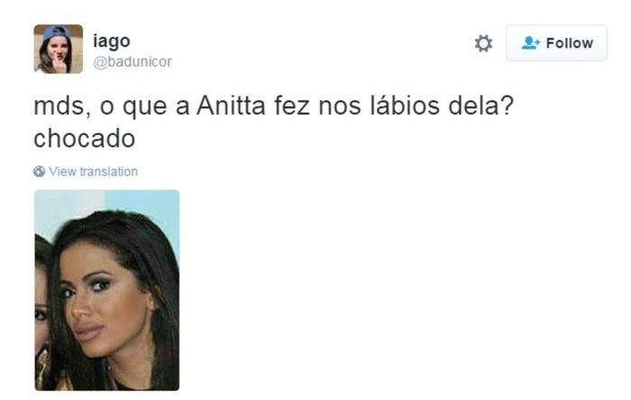 Boca de Anitta vira alvo de críticas nas redes sociais (Crédito: Reprodução)