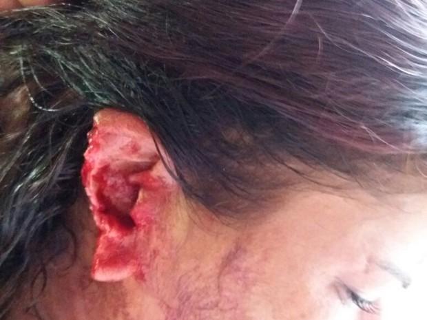 Mulher teve parte da orelha arrancada (Crédito: Divulgação/Polícia Civil))