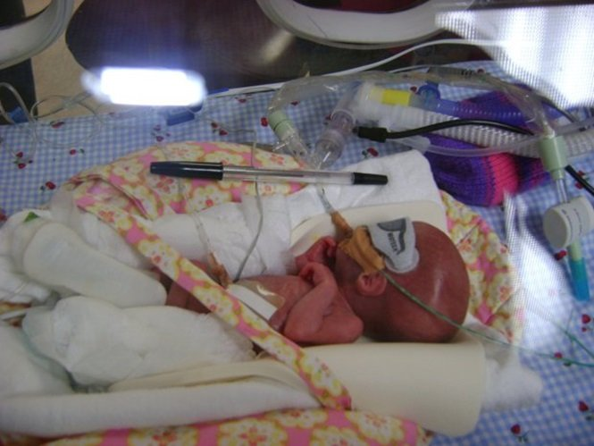 Bebê prematuro sobrevive após ficar ao lado de sua irmã gêmea  (Crédito: Reprodução)