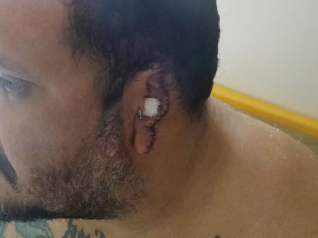 Homem tem parte da orelha arrancada em briga de trânsito em SP (Crédito: Reprodução)