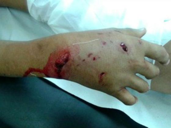 Criança foi atacada no rosto e na mão