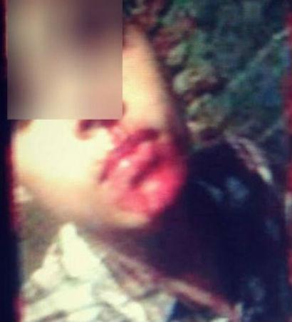 Jovem foi agredido com socos na boca pelo próprio pai