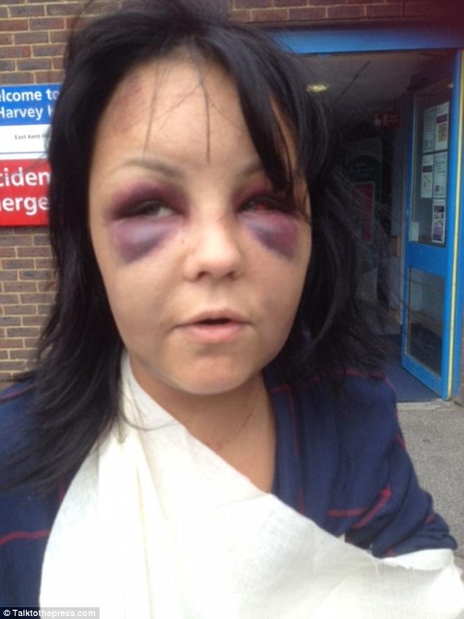 Vítima foi espancada com taco  (Crédito: Divulgação)