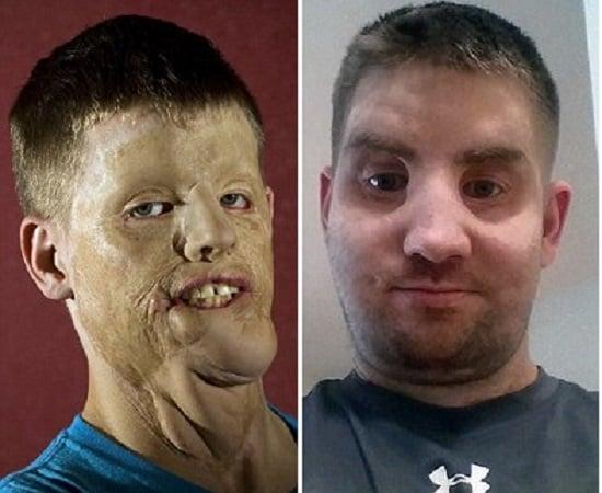 Mitch Hunter antes e depois da cirurgia (Crédito: Reprodução)