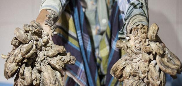 Homem possui doença rara e está se transformando em uma árvore