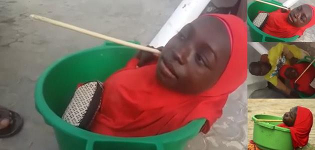 Vídeo da menina que nasceu sem corpo e vive em uma bacia
