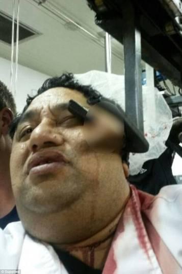 Homem ficou com gancho preso no rosto (Crédito: Reprodução)