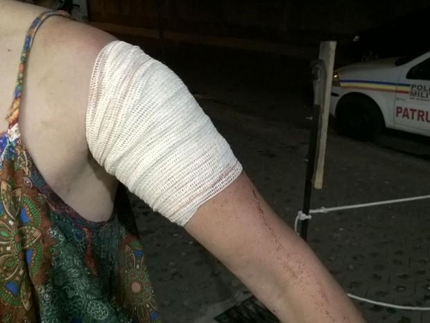 A vítima teve o braço atingido pelo flanelinha (Crédito: Divulgação)
