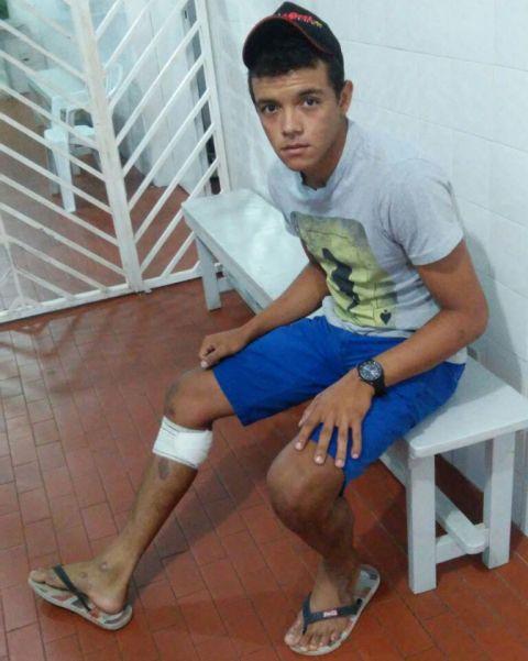 Amigo foi baleado na perna (Crédito: Reprodução)