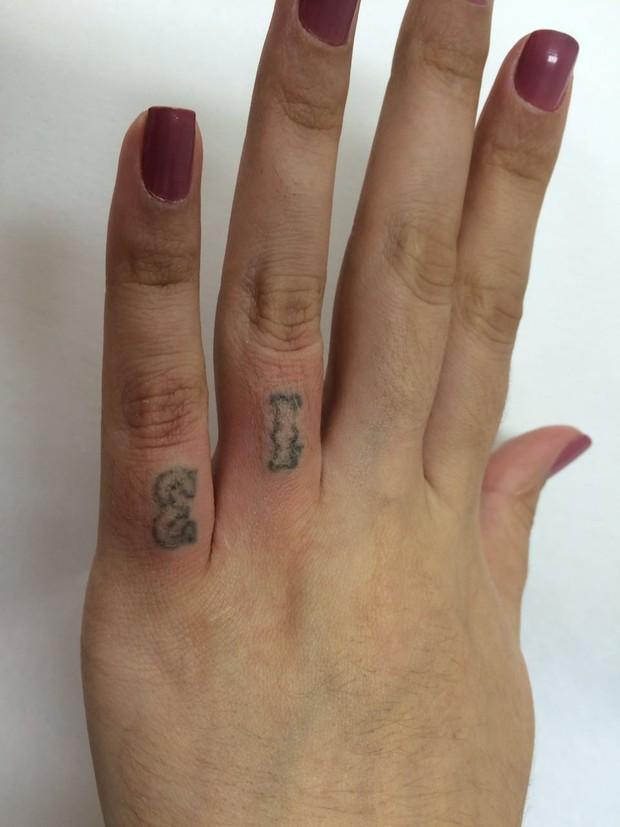 Andressa Urach remove tatuagens (Crédito: Divulgação)