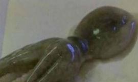 Homem é preso após polvo ser encontrado na garganta de seu enteado