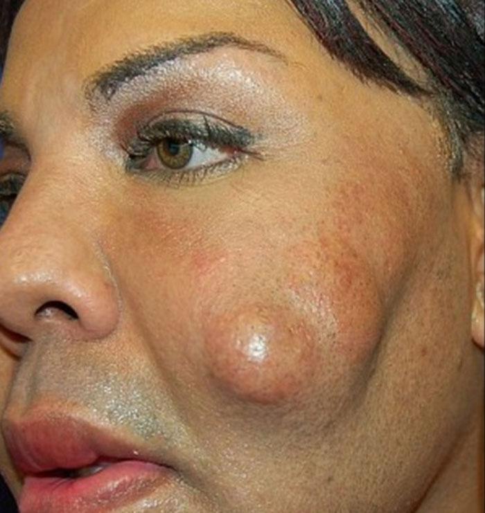 Teansexual ficou com rosto deformado (Crédito: Divulgação)