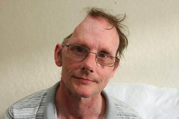 Kenny Bailey perdeu metade do crânio após sofrer AVC