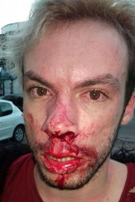 Jovem tem nariz quebrado após agressão
