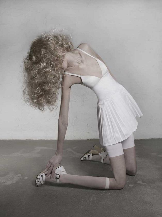 Sessão de fotos sobre anorexia (Crédito: Reprodução)