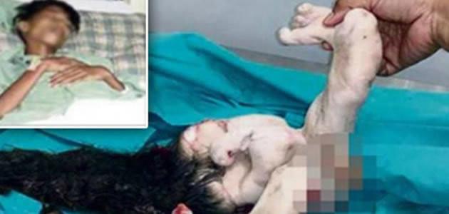 Gêmeo é retirado da barriga do irmão após cirurgia