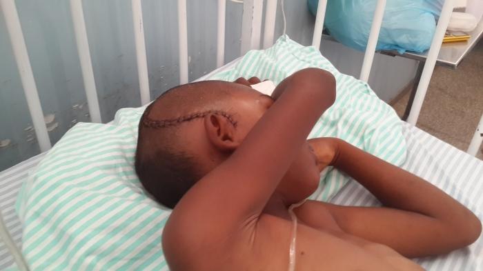 Criança teve corte na cabeça após cair do carro