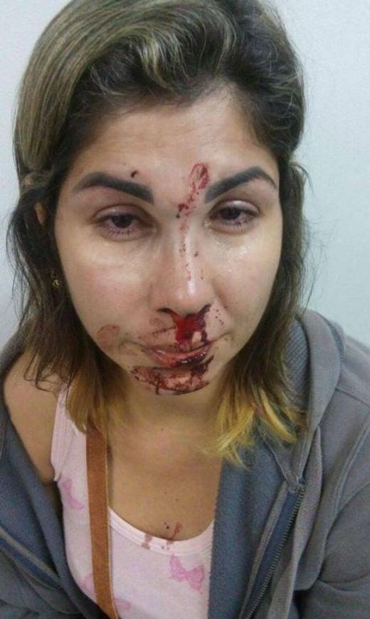 Garoto publicou foto da mãe agredida pelo marido