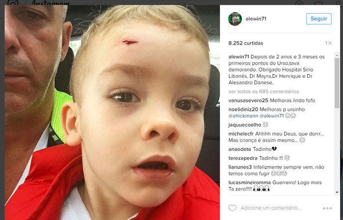 Filho de Ana Hickmann levou pontos na testa  (Crédito: Reprodução/ Instagram)