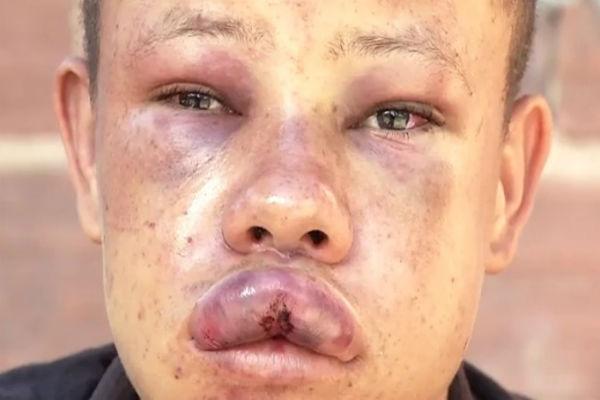 Adolescente foi agredido após surto psicótico