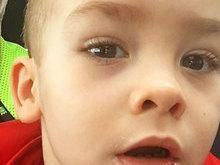 Filho de Ana Hickmann sofre acidente e leva pontos no rosto