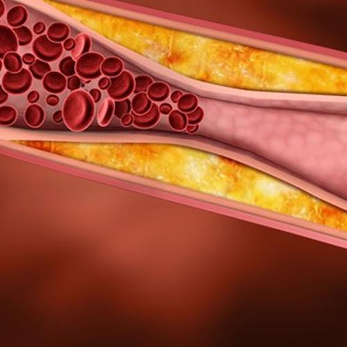 Saiba 17 fatos curiosos sobre o colesterol