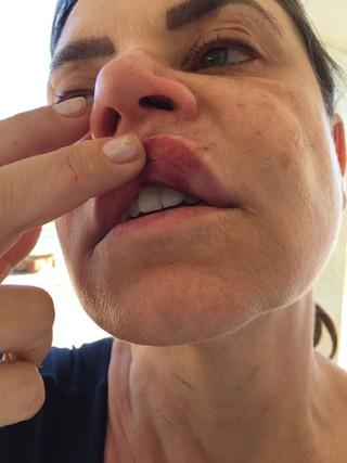 Flor foi agredida na boca pelo bandido